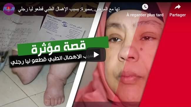 القصة المؤلمة لسميرة..هكذا فقدت قدمها بسبب الإهمال الطبي (+فيديو)