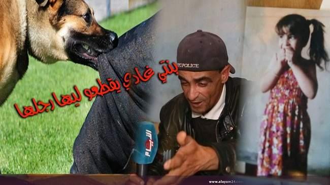 تفاصيل صادمة عن قضية الكلب الذي نهش رجل طفلة بالمحمدية