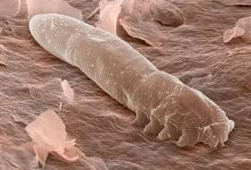 معلومات ستصدمك.. حشرات بثمانية أرجل تعيش على وجهك دون علمك !