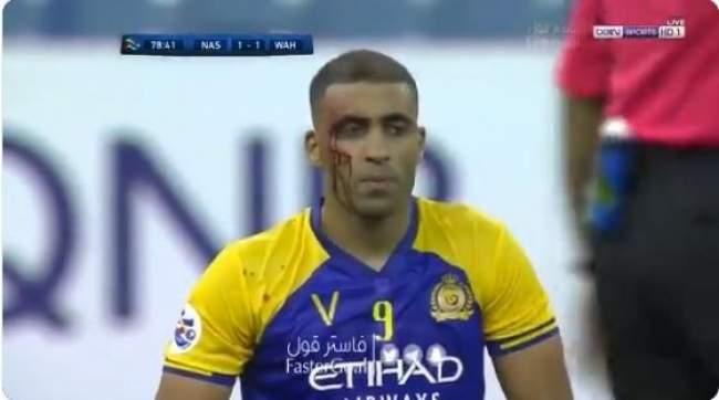 لاعب تتسبب في إصابة خطيرة لحمد الله يخرج عن صمته!