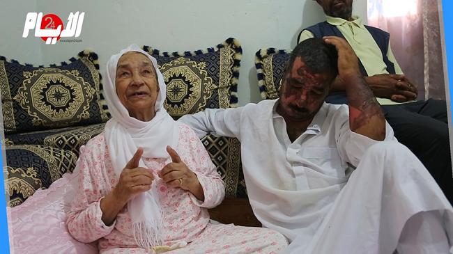 دموع وحسرة في أول لقاء مع ابنها الفقيه المحروق على يد زوجته
