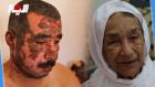 الأم التسعينية تفضح المستور بعد حرق ابنها الفقيه بالزيت المقلي من طرف زوجته