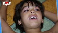 سعد حالة نادرة: قسَم لسانه إلى نصفين.. لا يبكي وإن ضُرب بمطرقة